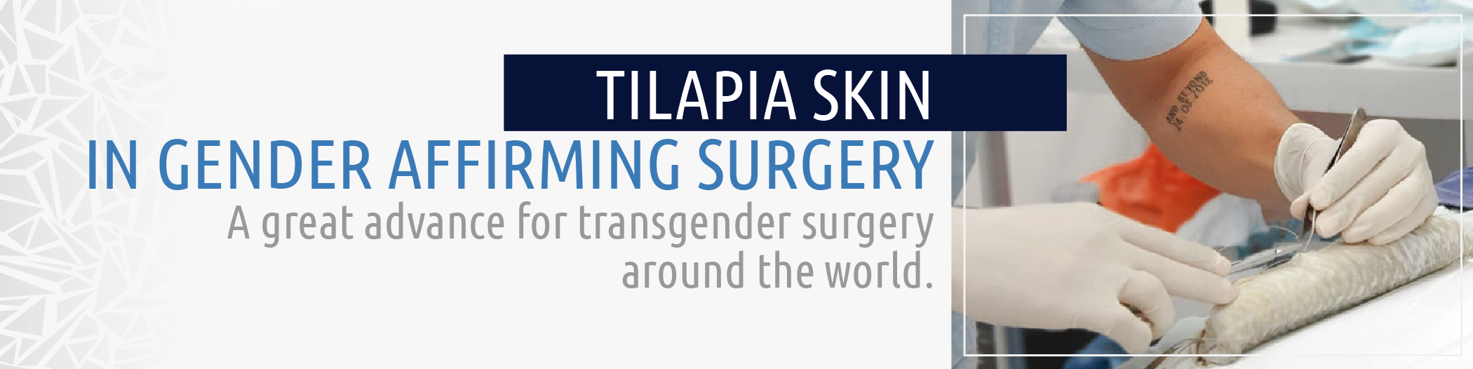 Tilapia Skin   CECM Colombia - Dr. Álvaro Hernán Rodriguez